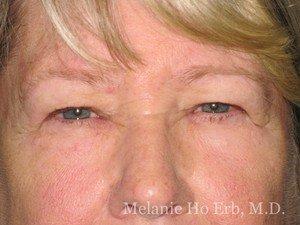 Patient Photo 25.1 Upper Blepharoplast Woman Before of Dr. Melanie Ho Erb