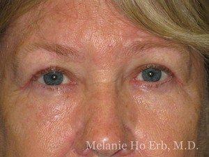 Patient Photo 25.2 Upper Blepharoplast Woman After of Dr. Melanie Ho Erb
