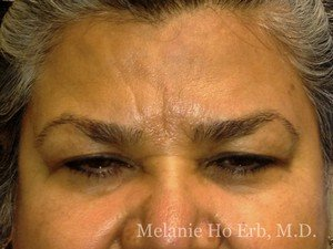 Patient 30.1 Brow Lift Before of Dr. Melanie Ho Erb