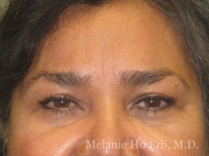Patient 30.2 Brow Lift After of Dr. Melanie Ho Erb