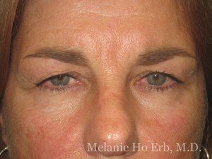 Patient Photo 31.1 Upper Blepharoplasty Female of Dr. Melanie Ho Erb