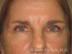 Patient Photo 31.2 Upper Blepharoplasty Female of Dr. Melanie Ho Erb