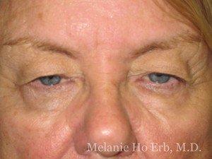 Patient Photo 35.1 Upper Blepharoplasty Before of Dr. Melanie Ho Erb