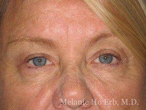 Patient Photo 35.2 Upper Blepharoplasty After of Dr. Melanie Ho Erb