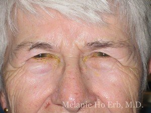 Patient 40.1 Brow Lift Before of Dr. Melanie Ho Erb