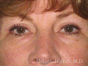 Patient Photo 40.2 After Upper Eyelid Blepharoplasty of Dr. Melanie Ho Erb