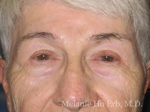 Patient 40.2 Brow Lift After of Dr. Melanie Ho Erb