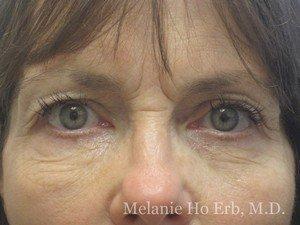 Patient Photo 45.1 Upper Blepharoplasty Before of Dr. Melanie Ho Erb