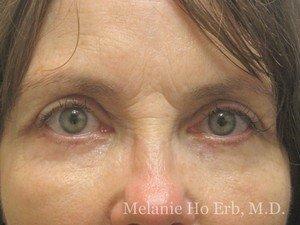 Patient Photo 45.2 Upper Blepharoplasty After of Dr. Melanie Ho Erb
