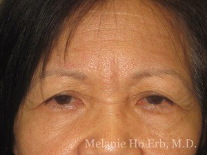 Patient 50.1 Brow Lift Before of Dr. Melanie Ho Erb