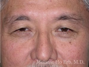Before Photo of Asian Blepharoplasty Patient 50.1 of Dr. Melanie Ho Erb