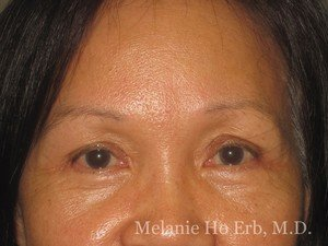 Patient 50.2 Brow Lift After of Dr. Melanie Ho Erb
