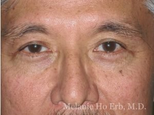 After Photo of Asian Blepharoplasty Patient 50.2 of Dr. Melanie Ho Erb
