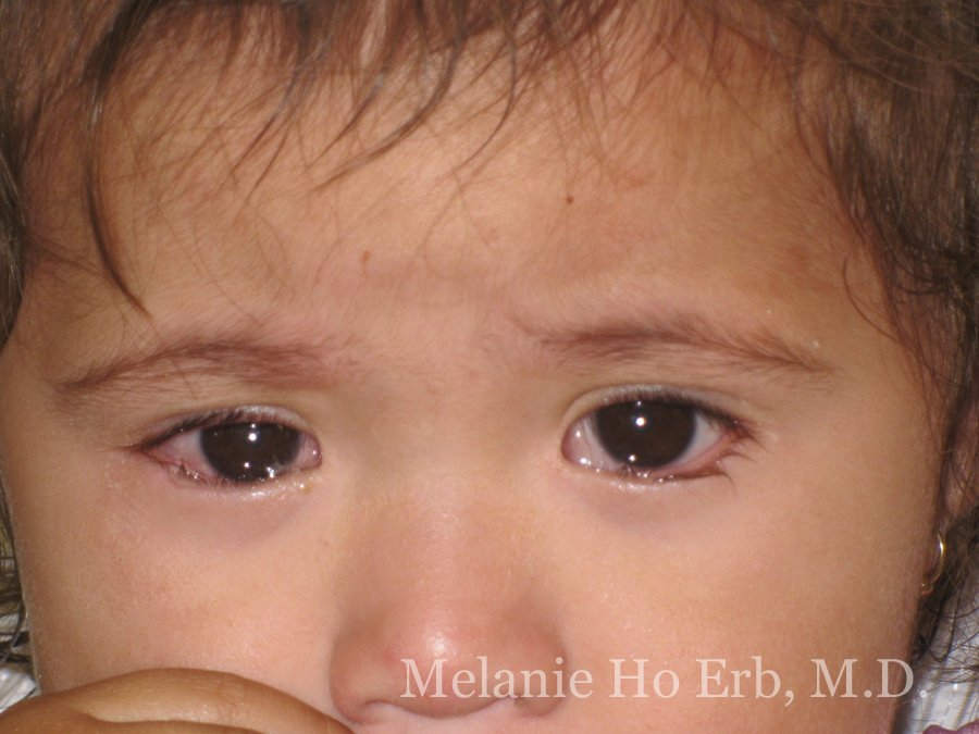 Before Photo of Pediatric Child Patient d1 of Dr. Melanie Ho Erb