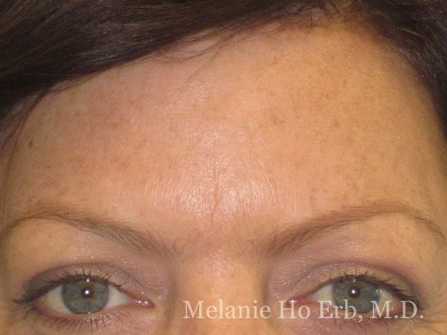 Before Photo of Botox Patient b3 of Dr. Melanie Ho Erb