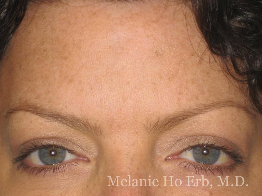 After Photo of Botox Patient b4 of Dr. Melanie Ho Erb