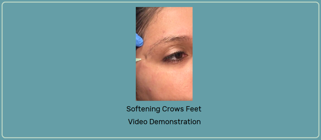 Banner with Video snapshot of Softening Crows Feet