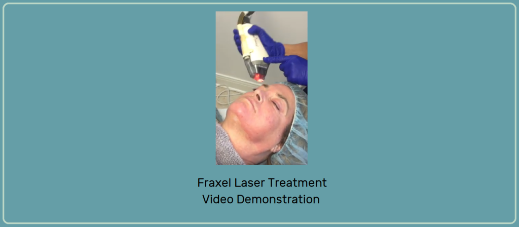 Banner with Video snapshot of Fraxel Laser Demonstration Video
