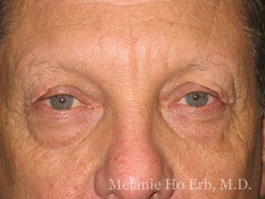 Patient Photo a1 Upper Blepharoplasty Before of Dr. Melanie Ho Erb