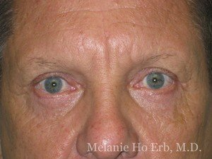 Patient Photo a2 Upper Blepharoplasty After of Dr. Melanie Ho Erb