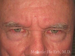 Patient Photo b1 Lower Blepharoplasty Before of Dr. Melanie Ho Erb