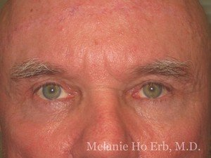 Patient Photo b2 Lower Blepharoplasty After of Dr. Melanie Ho Erb