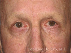 Patient Photo c2 Lower Blepharoplasty After of Dr. Melanie Ho Erb