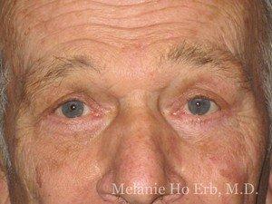 Patient Photo d2 Upper Blepharoplasty After of Dr. Melanie Ho Erb