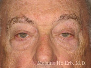 Patient Photo e1 Lower Blepharoplasty Before of Dr. Melanie Ho Erb
