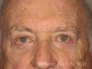Patient Photo e2 Lower Blepharoplasty After of Dr. Melanie Ho Erb