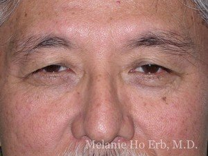 Patient Photo j1 Lower Blepharoplasty Before of Dr. Melanie Ho Erb