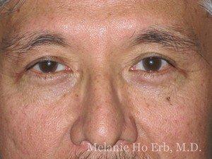 Patient Photo j2 Lower Blepharoplasty After of Dr. Melanie Ho Erb