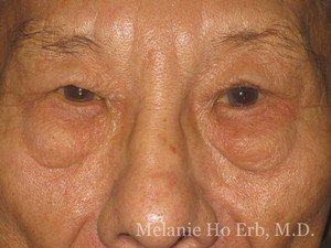 Patient Photo x1 Lower Blepharoplasty Before of Dr. Melanie Ho Erb