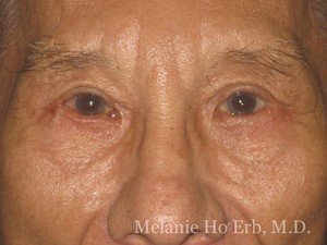 Patient Photo x2 Lower Blepharoplasty After of Dr. Melanie Ho Erb