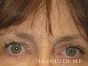 Before Photo of Botox Patient a1 of Dr. Melanie Ho Erb