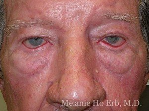 Before Photo of Ectropion Repair Patient a1 of Dr. Melanie Ho Erb