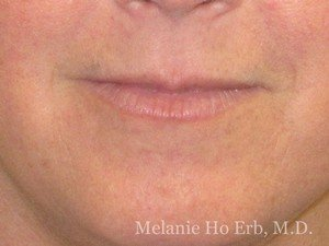 Before Photo of Filler Patient a1 of Dr. Melanie Ho Erb
