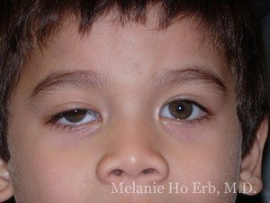 Before Photo of Pediatric Child Patient a1 of Dr. Melanie Ho Erb