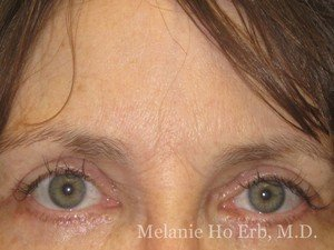 After Photo of Botox Patient a2 of Dr. Melanie Ho Erb
