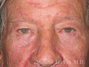 After Photo of Ectropion Repair Patient a2 of Dr. Melanie Ho Erb