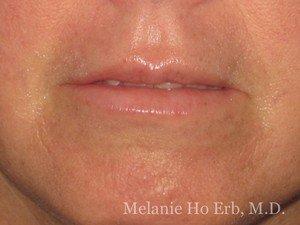 After Photo of Filler Patient a2 of Dr. Melanie Ho Erb