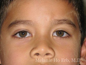 After Photo of Pediatric Child Patient a2 of Dr. Melanie Ho Erb