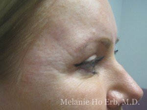 Before Photo of Filler Patient b1 of Dr. Melanie Ho Erb