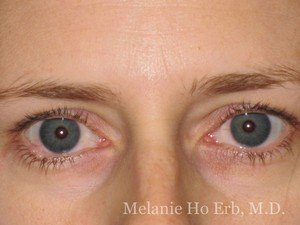 Before Photo of Removal of Bumps Patient b1 of Dr. Melanie Ho Erb