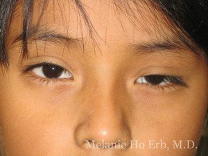 Before Photo of Pediatric Child Patient b1 of Dr. Melanie Ho Erb