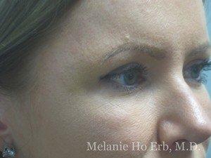 After Photo of Filler Patient b2 of Dr. Melanie Ho Erb