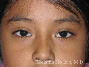 After Photo of Pediatric Child Patient b2 of Dr. Melanie Ho Erb