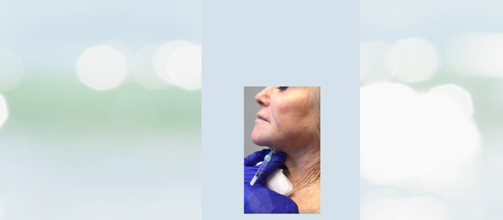 This is Botox Neck on Header Background