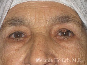 Before Photo of Removal of Bumps Patient c1 of Dr. Melanie Ho Erb