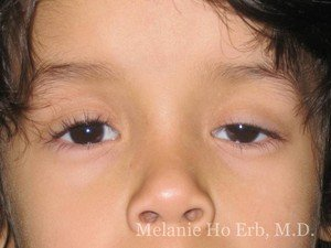Before Photo of Pediatric Child Patient c1 of Dr. Melanie Ho Erb